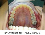tooth filling with amalgam   Shutterstock . vector #766248478