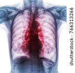 pulmonary tuberculosis . film... | Shutterstock . vector #766313266