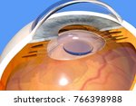 intraocular lens implanted in... | Shutterstock . vector #766398988
