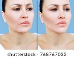 marking the face.perforation... | Shutterstock . vector #768767032