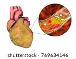 obese heart and closeup view of ... | Shutterstock . vector #769634146