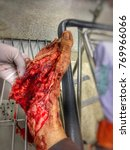 Small photo of Laceration wound from accident for education medical and emergency