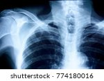 film chest x ray  show normal...   Shutterstock . vector #774180016