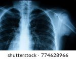 film chest x ray  show normal... | Shutterstock . vector #774628966