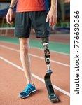 legs of unrecognizable amputee... | Shutterstock . vector #776630566