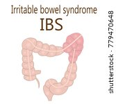 irritable bowel syndrome  ibs ... | Shutterstock .eps vector #779470648