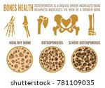 osteoporosis stages image.... | Shutterstock .eps vector #781109035