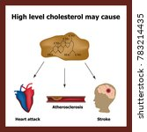high cholesterol causes   heart ... | Shutterstock . vector #783214435