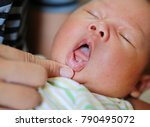 fungus on the infant lip. | Shutterstock . vector #790495072