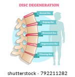 disc degeneration flat... | Shutterstock .eps vector #792211282
