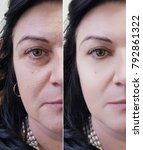 Small photo of woman face wrinkles before and after