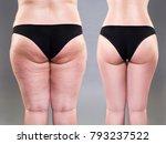 overweight woman with fat legs...   Shutterstock . vector #793237522