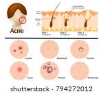 different types of acne... | Shutterstock .eps vector #794272012