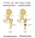 types of hip fracture. non... | Shutterstock .eps vector #794491342