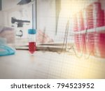 pipette and test tube in... | Shutterstock . vector #794523952