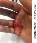 Small photo of Bloody hand laceration
