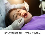 overview of dental caries... | Shutterstock . vector #796374262