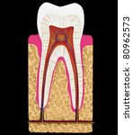 Dental medicine: Tooth cut or section isolated over black background - stock photo