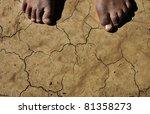 Bare Feet On Drought Stricken...