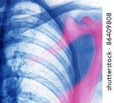 x-ray Axoloto chest of human - stock photo