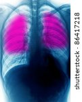 x-ray lung chest of human - stock photo
