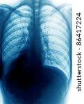 x-ray thorax - stock photo
