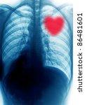 x-ray red heart - stock photo