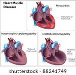 diseases of heart muscle | Shutterstock .eps vector #88241749