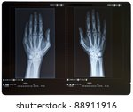 X Ray Of Hands. Female.