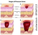 Stages of pressure sores - stock vector