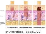 Skin burns - stock vector