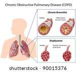 chronic obstructive pulmonary... | Shutterstock .eps vector #90015376