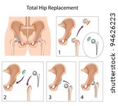 total hip replacement surgery | Shutterstock .eps vector #94626223