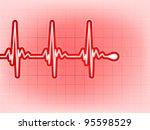 Vector analysis of heart