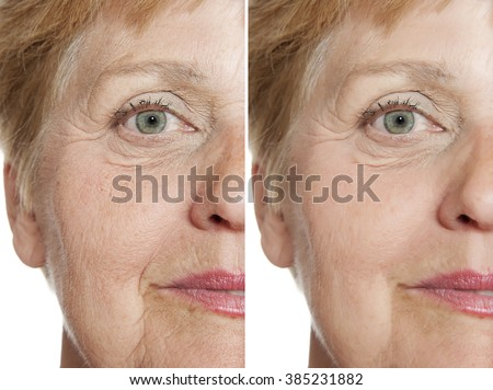 before - after - stock photo