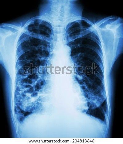 """Bronchiectasis""  X-ray chest show : multiple lung bleb and cyst due to chronic infection"