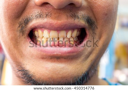 how to clean cigarette stains from teeth