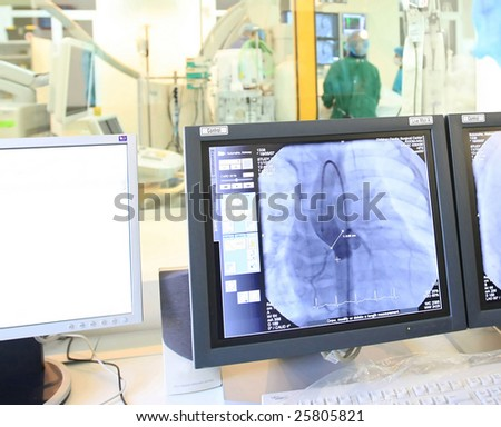 computer monitor during heart operation - stock photo