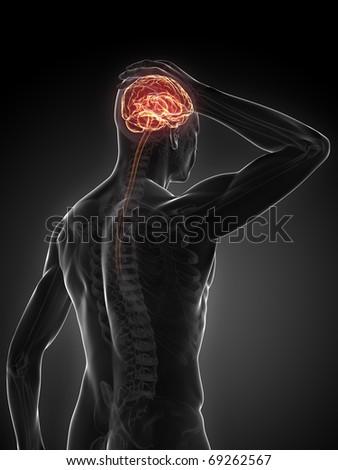 3d headache illustration - stock photo