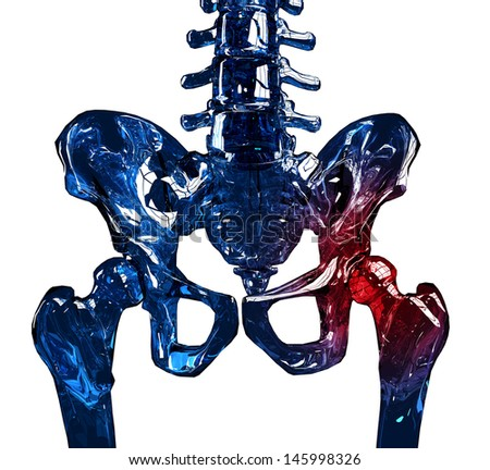 3D illustration of a human glass skeleton hip in pain. Isolated over white background.  - stock photo
