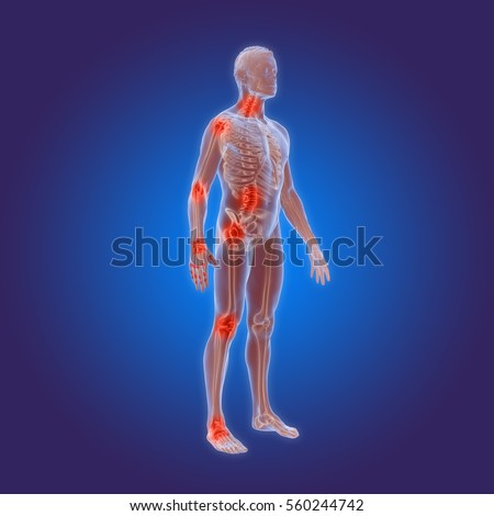 Osteoarthritis Stock Images, Royaltyfree Images & Vectors. Solar City San Francisco Vinyl Banner Printing. How To Do Well On The Mcat Best File Sharing. Citibank Wealth Management Cma Online Courses. Cadillac Ats Commercial Used Rack Mount Server. Types Of Solar Water Heating Systems. Cheap Monthly Insurance Kid Facts About Italy. Architectural Drafting School. Modified Whole Life Insurance Definition