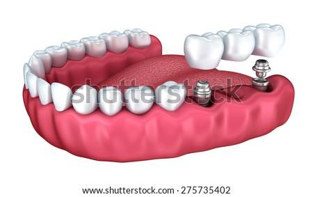 3d lower teeth and dental implant isolated on white - stock photo