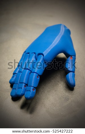 3D Printed Blue Prosthetic Hand