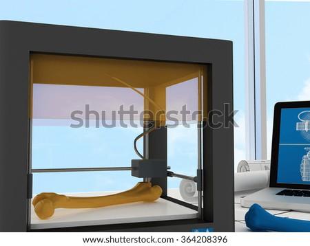 3d printed femur - stock photo