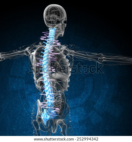 3d render medical illustration of the painful back - side view - stock photo
