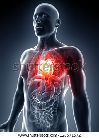 3d rendered illustration - heart attack - stock photo