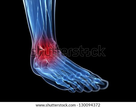 3d rendered illustration of a painful foot - stock photo
