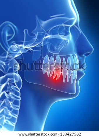 3d rendered illustration of a painful tooth - stock photo