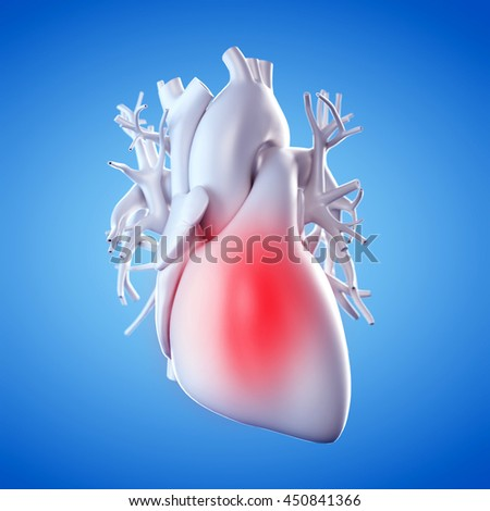 3d rendered illustration of an inflamed heart - stock photo