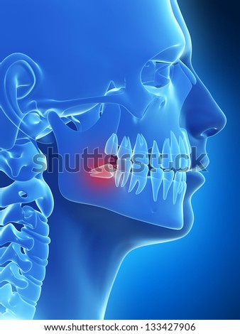 3d rendered illustration of the wisdom teeth - stock photo